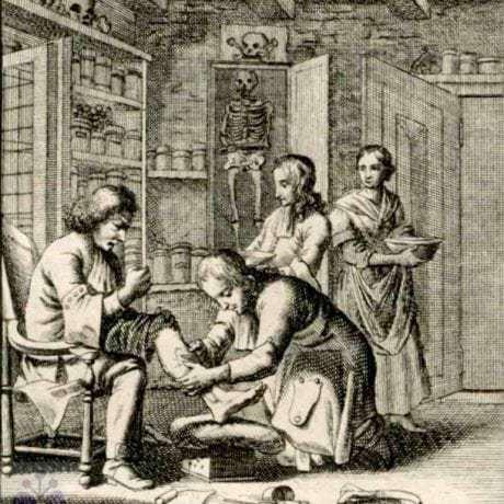 Barbier (holič) alebo kúpeľník, ktorý poskytoval liečebné služby vo vlastnej ordinácii alebo pri vojsku ako felčiar, si mohol po piatich rokoch založiť samostatnú živnosť. Ránhojič. Nemecko, 17. storočie. Prevzaté z Weigel, Ch.: Abbildung Der Gemein